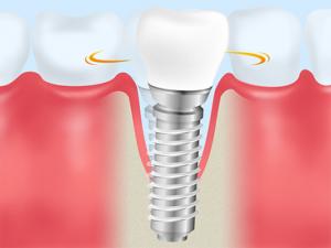 歯周病の悪化を招きやすい