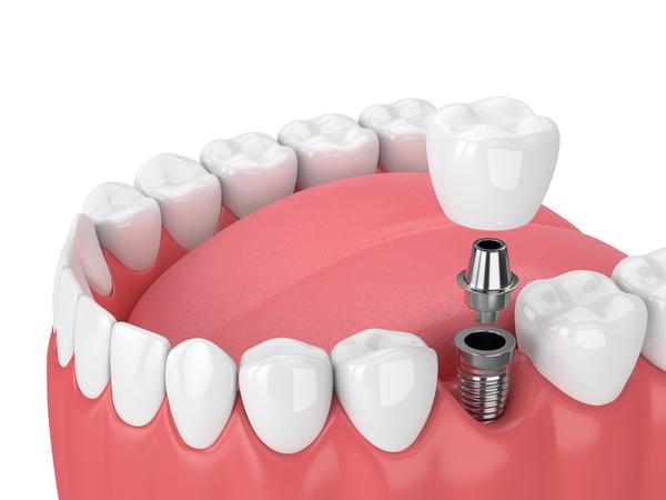 奥歯のインプラントのメリット・デメリット