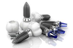 10メーカー12種類のインプラント体から自分にあったインプラントを選択